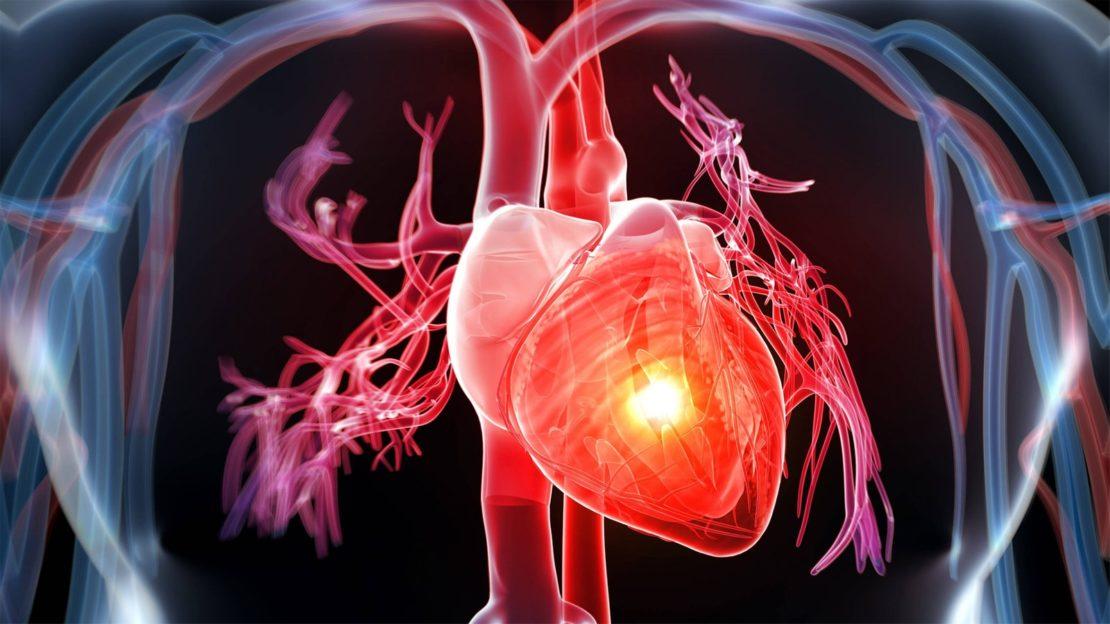 Paradoxe Situation: 40 Prozent weniger Herzinfarkte in Österreich